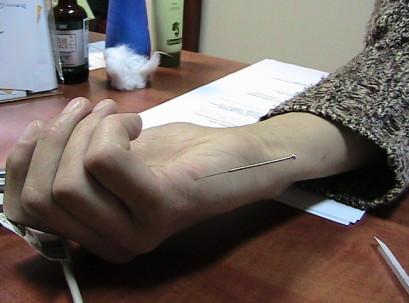 דיקור מסטר טונג - הנקודה 22.08 היעילה מאוד לפריצת דיסק וכאבי גב תחתון עם הקרנה לרגל