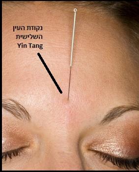 נקודת דיקור למיגרנה Yin Tang