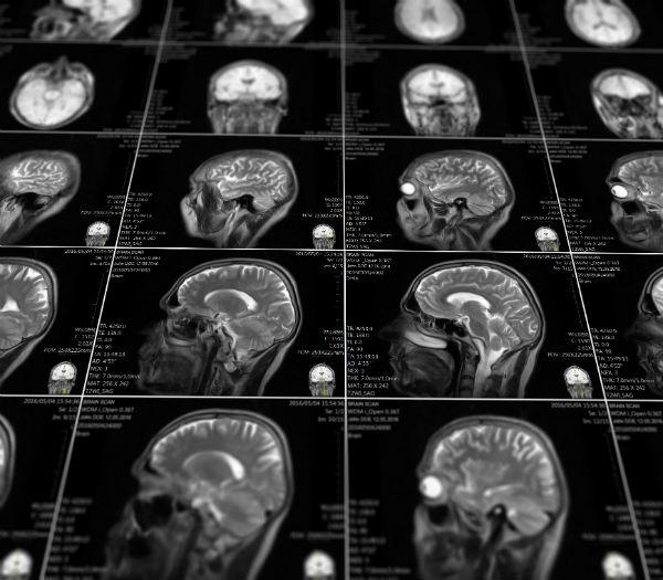תמונות MRI של המח