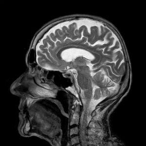 צילום של המדיית ראש באמצעות MRI
