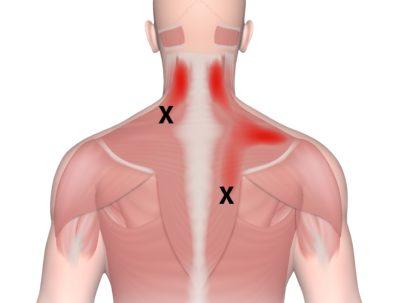נקודת טריגר שמקרינה לצוואר ולגב העליון