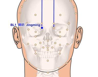 נקודת דיקור bl2 המשמשת לטיפול בבעיות עינייםנקודת דיקור bl2 המשמשת לטיפול בבעיות עיניים