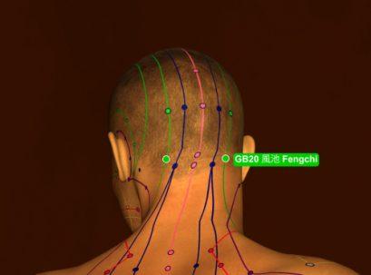 נקודת דיקור gb20 המשמשת לטיפול בבעיות עיניים