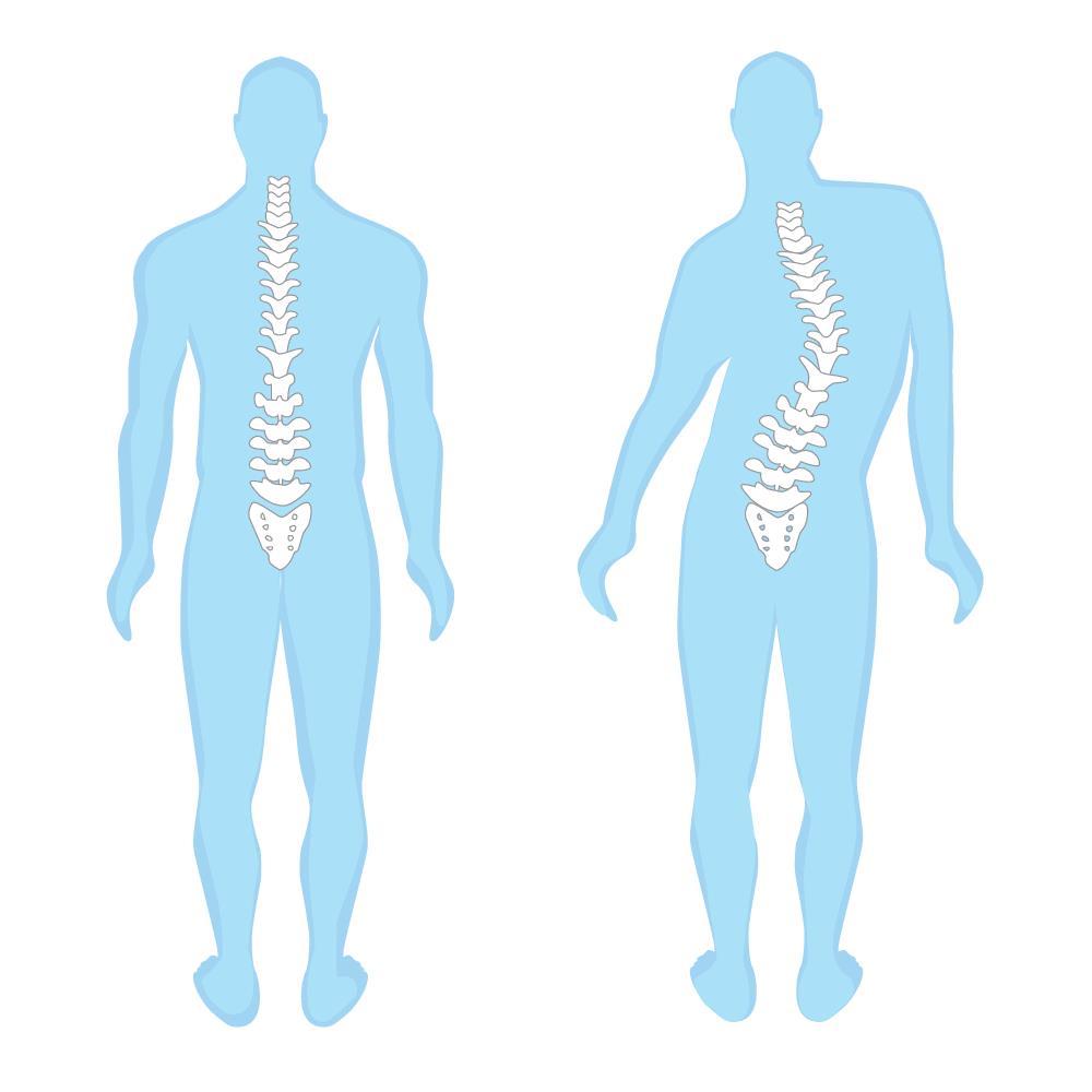 כתף גבוהה שמשפיעה על האגן הנגדי ועל כף הרגל הנגדית