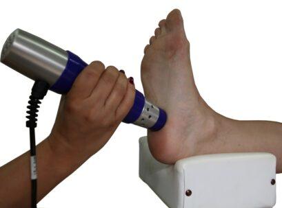 טיפול בגלי הלם לדורבן בעקב